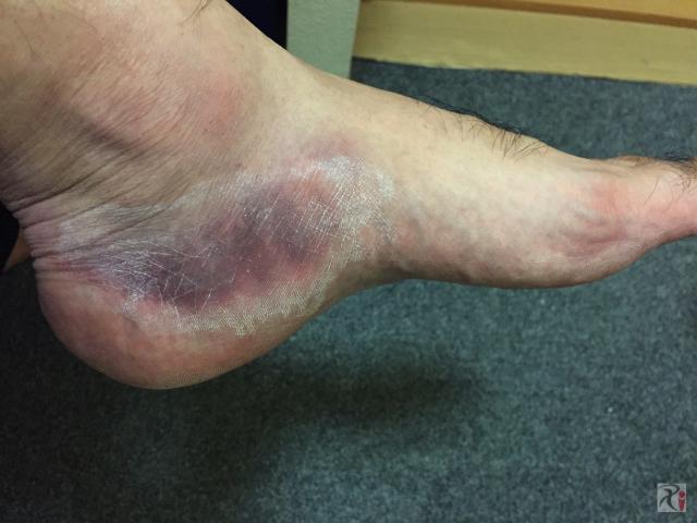 負傷した左足